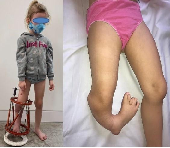 4-letnia Amelia operacja nogi degi - Szpital Kliniczny im. Wiktora Degi